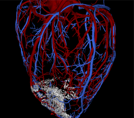 Image of a scaffold on a heart