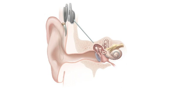 Image of cochlear implant