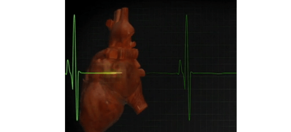 Illustration of heart and cardiogram