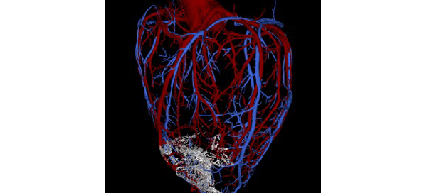 Regenerated heart muscle (white)