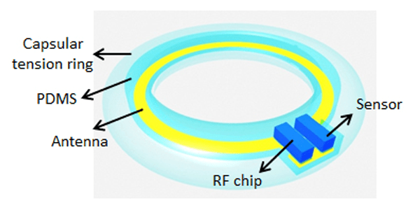 Illustration of device, containing artificial lens, sensor and RF chip