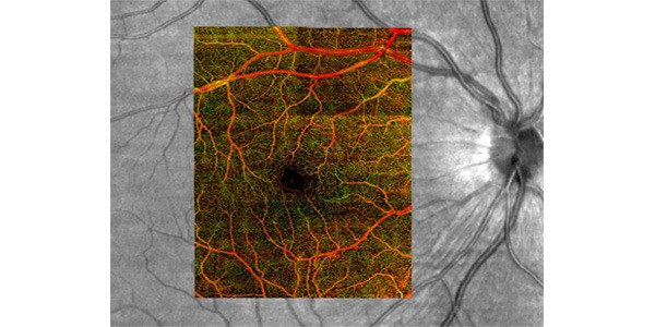 Image of retina vessels