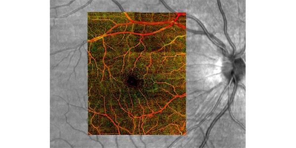 Image of retina vessels