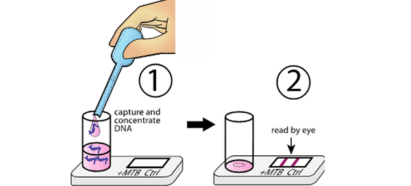 Illustration demonstrating how diagnostic device detects tuberculosis from urine