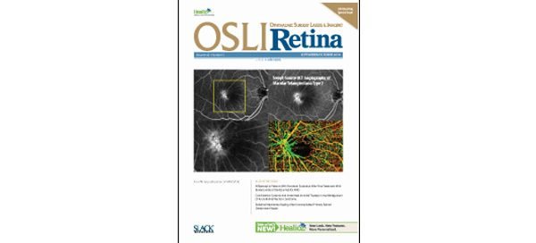 UW Bioengineering Professor Ruikang Wang's research featured on cover of OSLI Retina journal