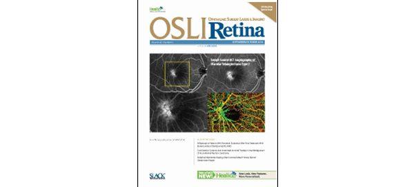 UW Bioengineering Professor Ruikang Wang's research featured on cover of OSLI Retina journal