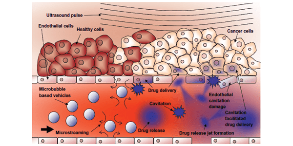 Averkiou ultrasound mediated drug delivery