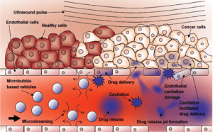 Illustration of ultrasound-mediated drug delivery to cancer cells