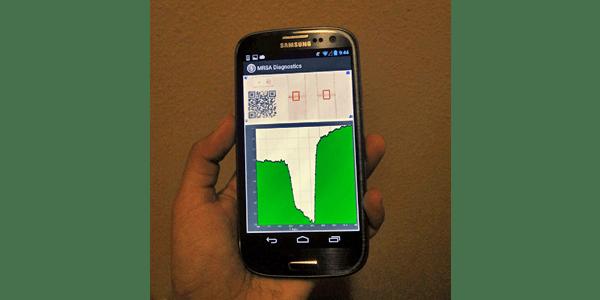 User holding phone showing medical diagnostic app