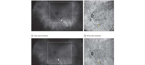 Identification of Choroidal Flow Voids Corresponding to Indocyanine Green Angiography (ICGA) Lesions via Swept-Source Optical Coherence Tomography Angiography (SS-OCTA)