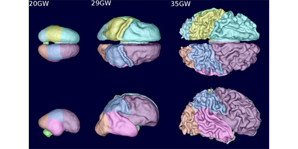 fetal brain growth shown with new MRI method