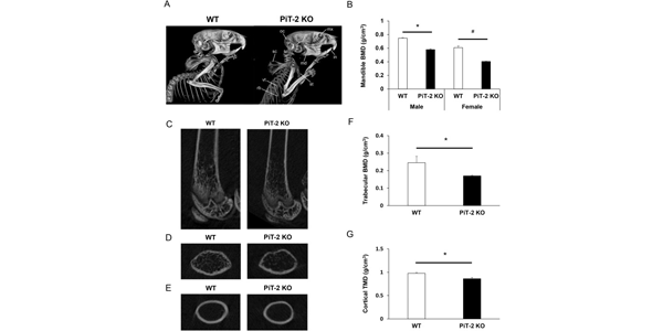 Global PiT-2 homozygous knockout mice exhibit reduced bone and tissue mineral density