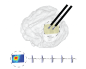 Large scale brain stimulation device