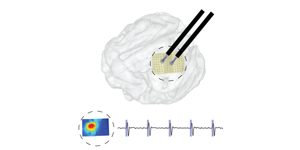 Large scale brain stimulation device