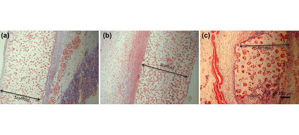 Masson's trichrome stain of tissue sample after 3 weeks implantation. (a) 40-µm PDMS scaffold; (b) 40-µm pHEMA scaffold; (c) 90-µm PDMS scaffold. Scale Bar?=?100??m