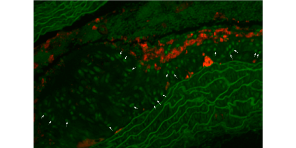 Runx2 in athersclerotic blood vessels