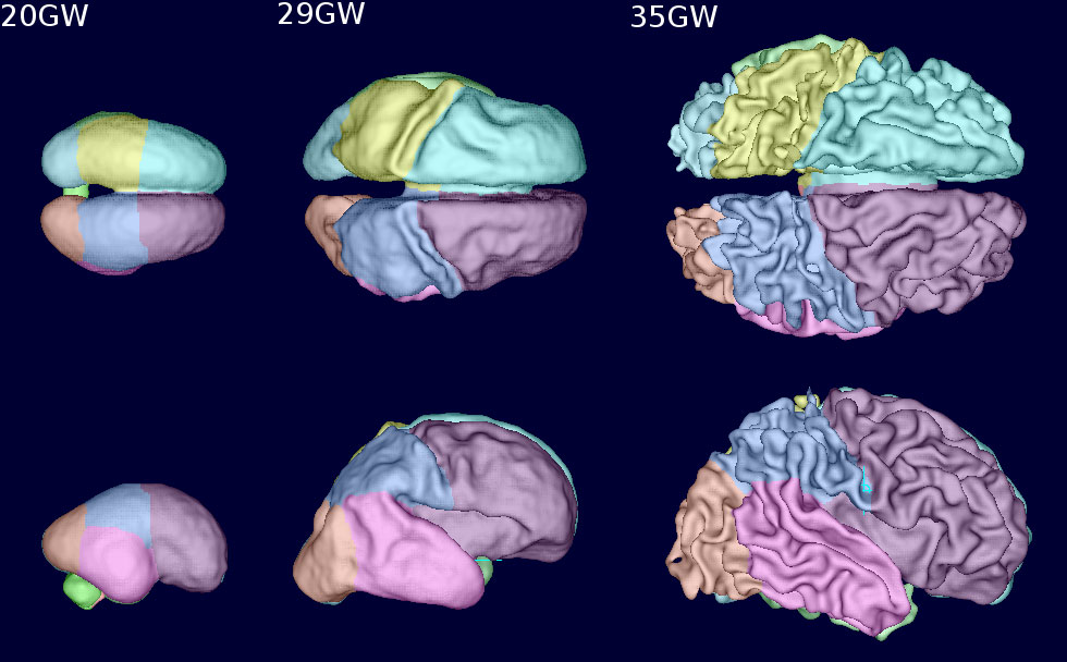 MRI motion correction techniques captured these images of fetal brain surface growth at 20, 29 and 35 weeks gestation.