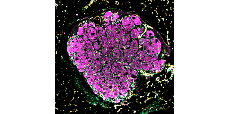 "Liver ""seed"" growing in mouse liver disease model"