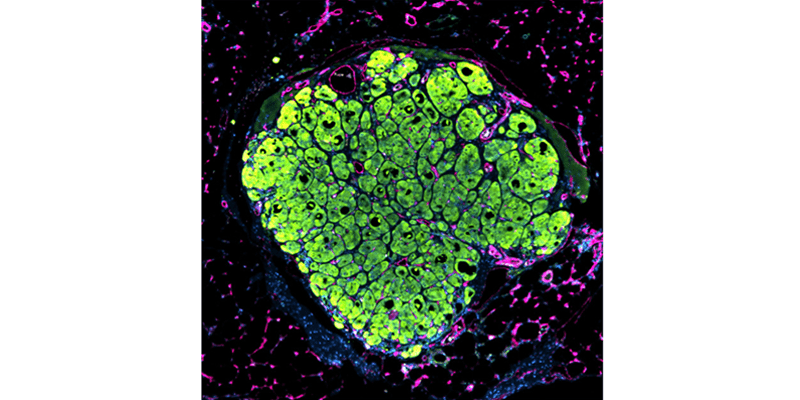 Microscopic image of a liver tissue seed grown in a mouse