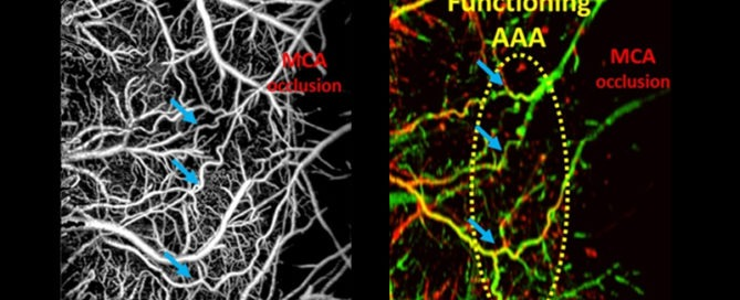 Monitoring arteriogenesis at the cerebral arteriolo-arteriolar anastomoses (AAAs) in mouse brain during middle cerebral artery occlusion using OCT-based microangiography (OMAG) (left) and Doppler OMAG (right).