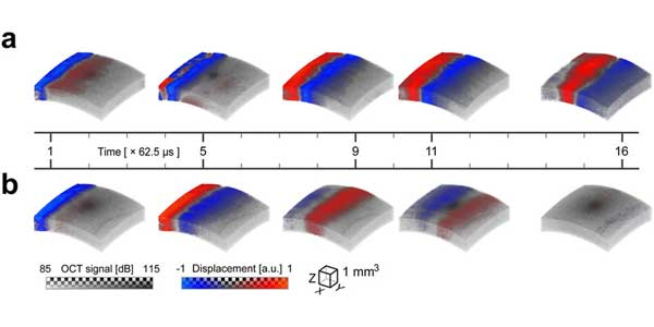 Transient displacement of a mechanical wave propagating in ex-vivo porcine eye.